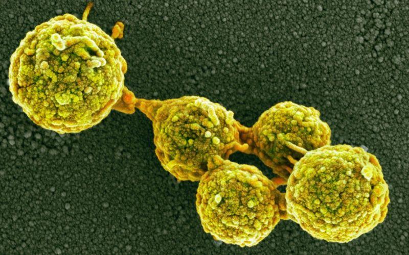 FLU virus medical disease wallpaper