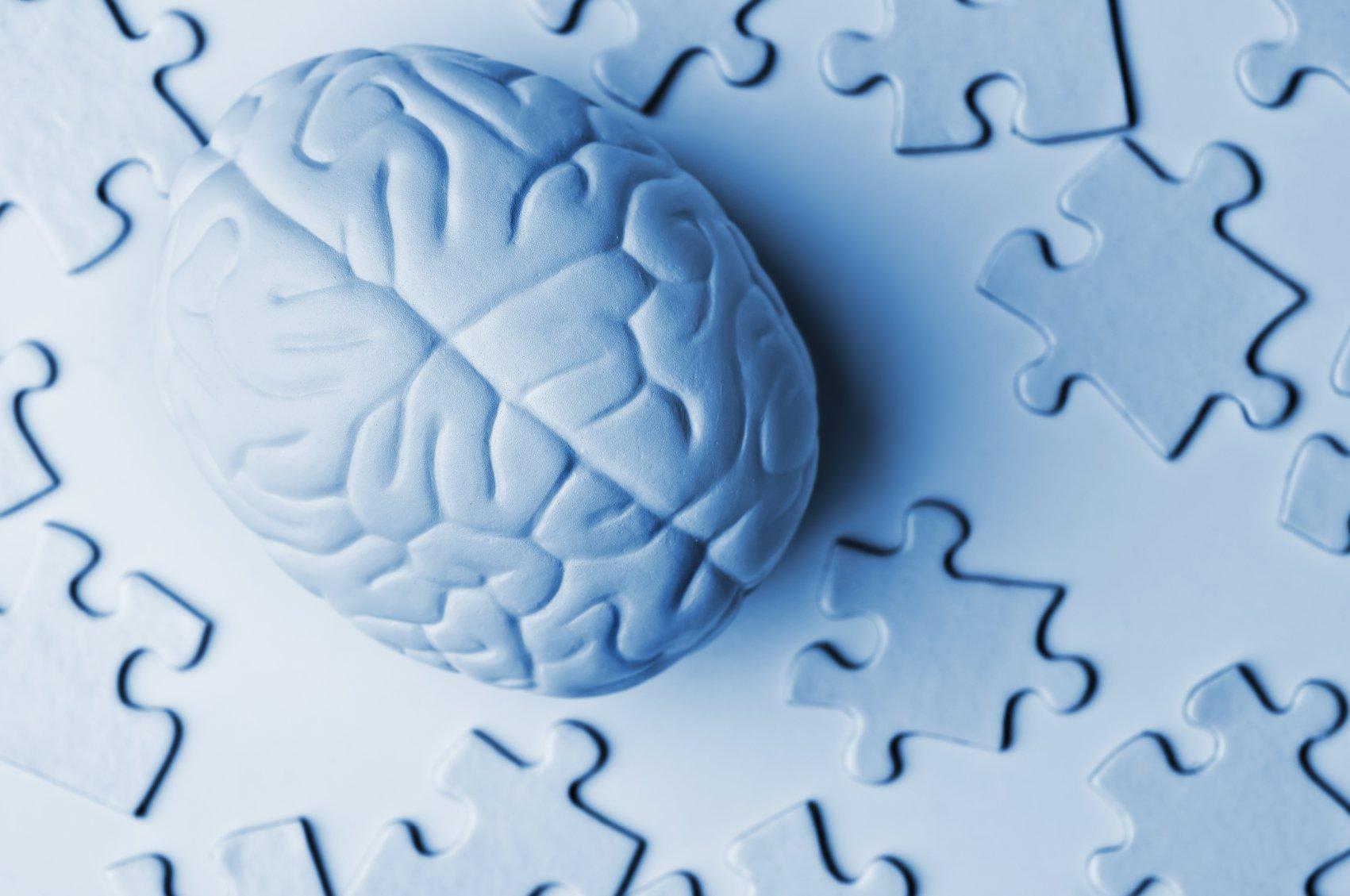 Brain anatomy medical head skull digital 3-d puzzle ...